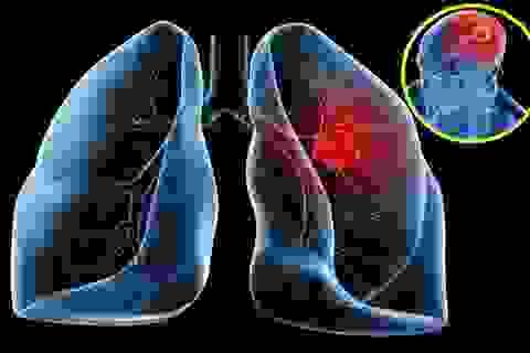 Tiến bộ trong điều trị ung thư phổi di căn