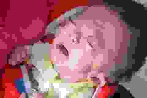 Tiếng khóc xé lòng của bé 7 tháng tuổi khắc khoải chờ bàn tay nhân ái