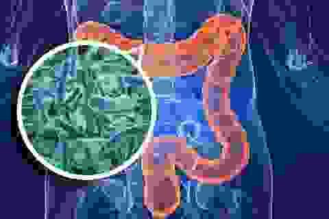 Bất ngờ phát hiện loại vi khuẩn đường ruột gây đột biến ung thư