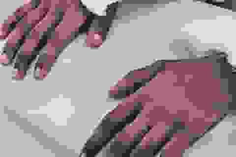 Đôi tay da đen chuyển màu sau khi cấy ghép cho người phụ nữ da sáng