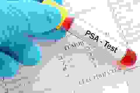 Chỉ số PSA và những cảnh báo nguy cơ ung thư tiền liệt tuyến