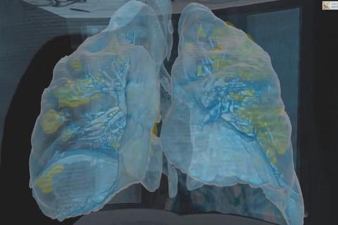 Video cho thấy phổi bị tổn thương nặng của bệnh nhân Covid-19