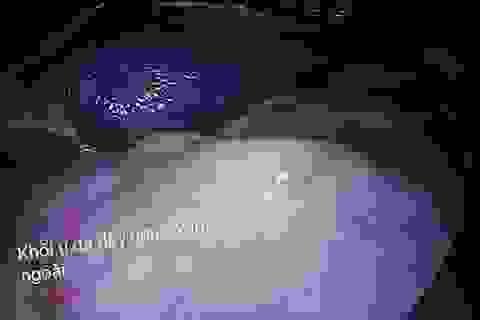 Phát hiện ca ung thư dạ dày sớm