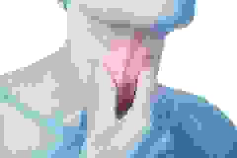 Đau đầu, ngạt mũi thoáng qua cảnh báo dấu hiệu ung thư vòm họng