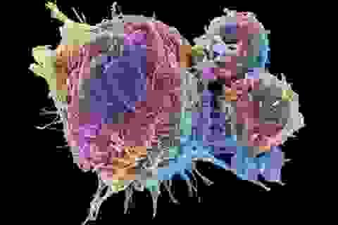 Khó tin: Điều trị ung thư bằng cách khiến chúng…tự hủy