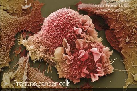 """Giải mã cách tế bào ung thư tuyến tiền liệt """"tái sinh"""" sau khi điều trị"""