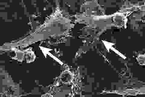 Các tế bào miễn dịch hoạt động quá mức gây tử vong cho bệnh nhân Covid-19?