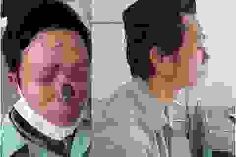 """Tái tạo mũi mới cho người đàn ông bị khối u ung thư """"ăn"""" mất mũi"""