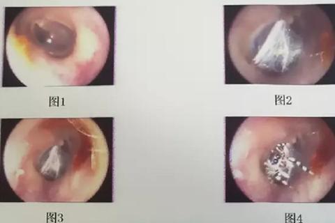 Nhện sống trong ống tai người phụ nữ Trung Quốc