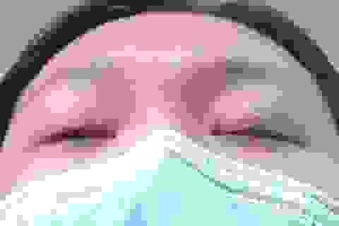 Muốn ngủ phải dán băng dính mí mắt sau phẫu thuật thẩm mỹ