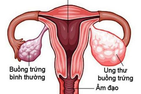 Liệu pháp tiêu chuẩn mới trong điều trị ung thư buồng trứng tái phát