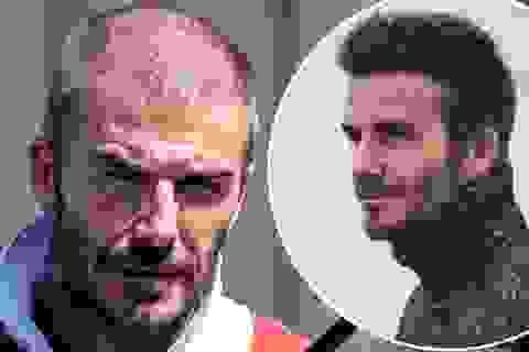 David Beckham đối mặt với chứng rụng tóc và tuổi tác