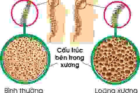 Dự phòng loãng xương ở bệnh nhân ung thư vú giai đoạn sớm
