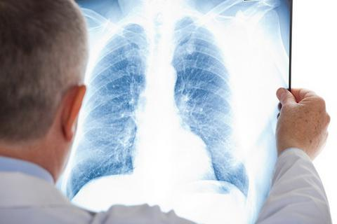 Triệu chứng thường gặp của bệnh ung thư phổi