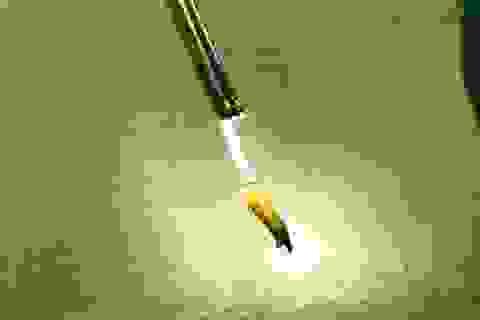 Hy hữu, người đàn ông nhập viện vì bị hạt thóc mắc kẹt trong dương vật