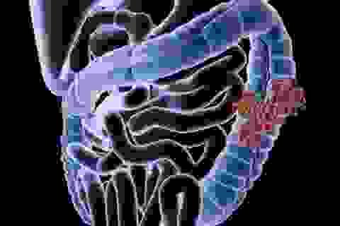 Ung thư ruột kết vì lạm dụng kháng sinh