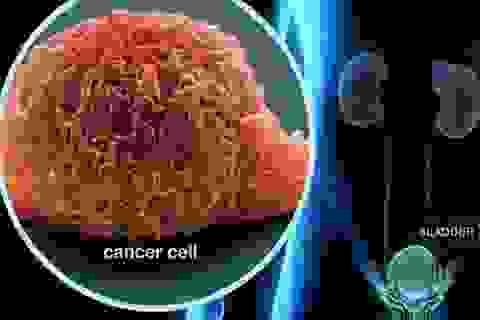 Hy vọng mới cho bệnh nhân ung thư di căn từ phương pháp kép