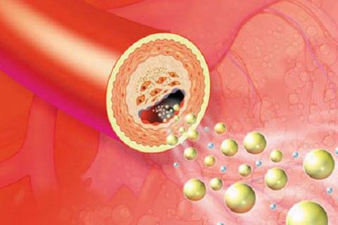 Lipidcleanz - Giải pháp giúp hỗ trợ kiểm soát rối loạn lipid máu