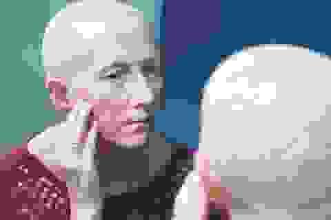 Tìm ra cách chặn đứng tác nhân dẫn đến 1/3 số ca tử vong do ung thư