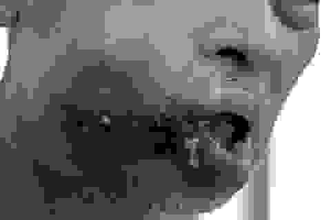 Khuôn mặt người đàn ông lở loét, biến dạng vì nặn mụn