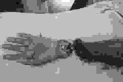 Hồi sinh cánh tay bị chém lìa sau va chạm giao thông
