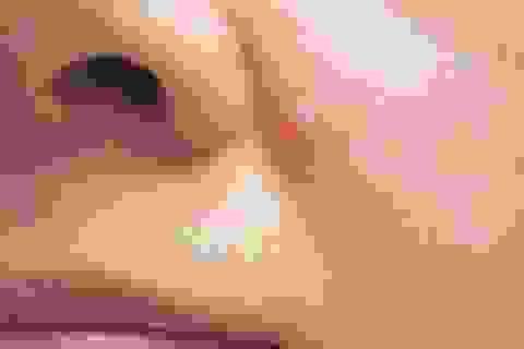 Ba dấu hiệu dễ bỏ qua của ung thư da