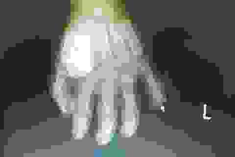 Nghịch dao, bé trai 17 tháng tuổi bị cứa đứt rời ngón tay