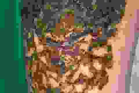 Hai đùi nam thanh niên nhiễm trùng, đen sì, chảy dịch vì xoá xăm