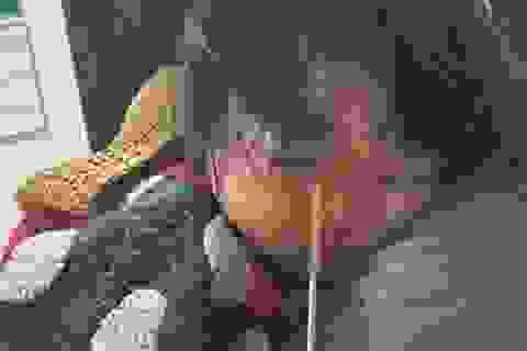 Vừa ăn kem vừa chạy nhảy, bé gái bị que kem cắm vào hốc mắt