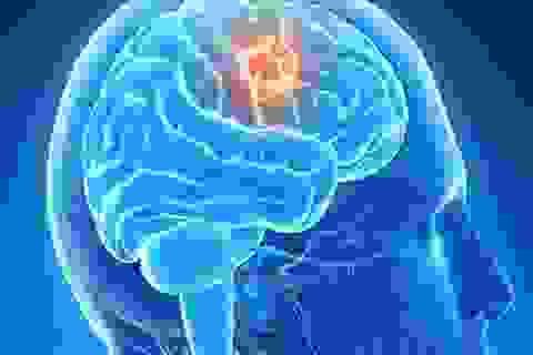 Thuốc trị sốt rét có thể khống chế ung thư não?
