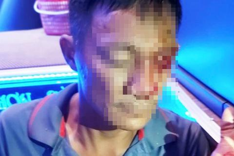 Lời kể của phụ xe khách bị chĩa súng, bắn vào mặt
