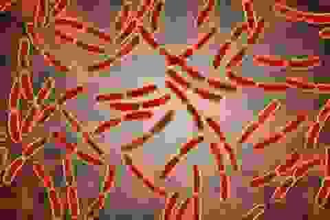 Vi khuẩn âm đạo liên quan đến ung thư buồng trứng