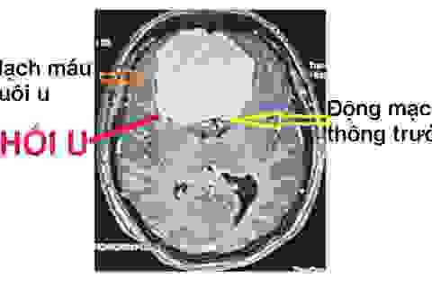 Nhức đầu kéo dài, đi khám phát hiện u não to bằng quả trứng