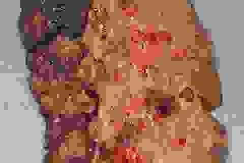 Mỹ: Bệnh nhân Covid-19 đã được ghép phổi như thế nào?