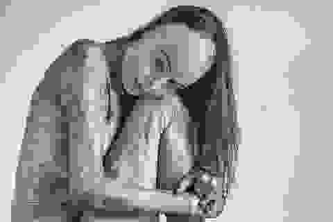 Cảm phục nghị lực sống của Hoa hậu bị bỏng 85% cơ thể