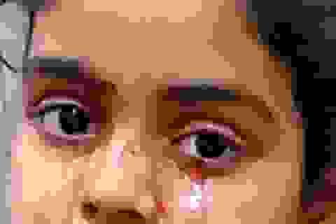 Bé gái 11 tuổi khóc ra máu ở Ấn Độ
