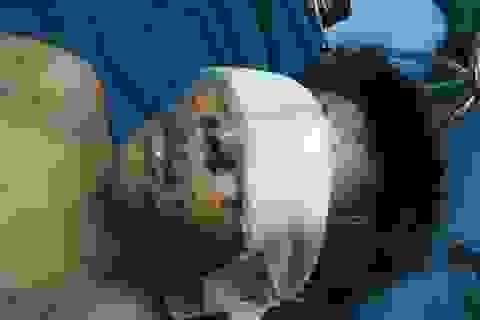 Quảng Trị:  Thiếu niên bị trọng thương, vỡ nhãn cầu 2 mắt sau tiếng nổ lớn