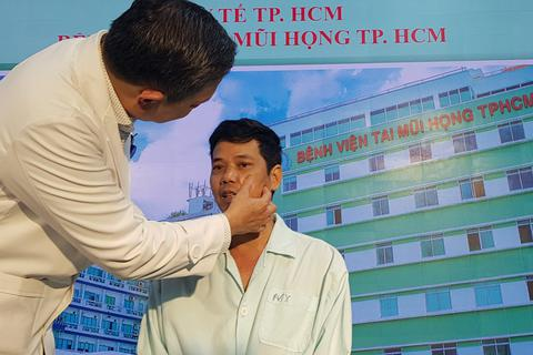 Biến chứng viêm xoang khiến người đàn ông đột ngột mất thị lực