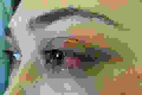 Tưởng đau mắt đỏ, bệnh nhân suýt mù vì bệnh lý hiếm gặp