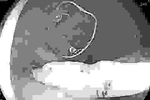 Quảng Bình: Nữ bệnh nhân 26 tuổi bị vòng tránh thai đâm thủng trực tràng
