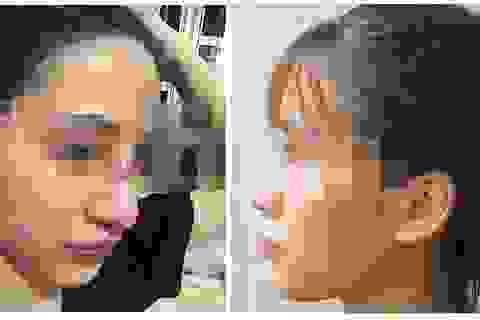 Nữ sinh 19 tuổi suýt thủng mũi sau khi làm đẹp tại spa