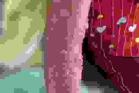 Bị sứa biển tấn công, bé gái trúng độc bỏng rộp cánh tay
