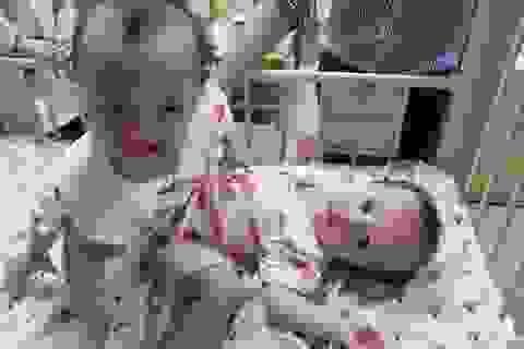 100 y bác sĩ  tham gia ca đại phẫu tách cặp song sinh dính nhau phức tạp