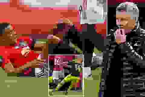 Man Utd bất ngờ chịu tổn thất lớn ở giai đoạn sinh tử