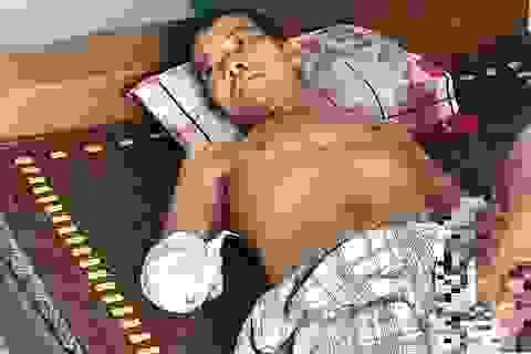 Xót xa người đàn ông đi kiếm cơm nuôi con bị phóng điện mất đôi bàn tay