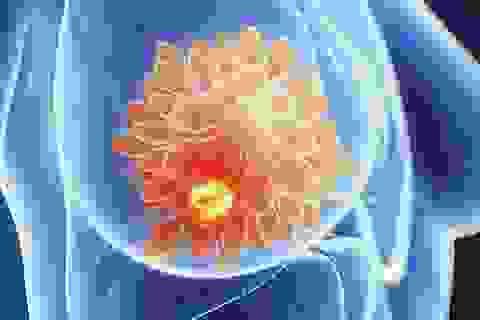 Tìm ra chất gây độc cho tế bào ung thư