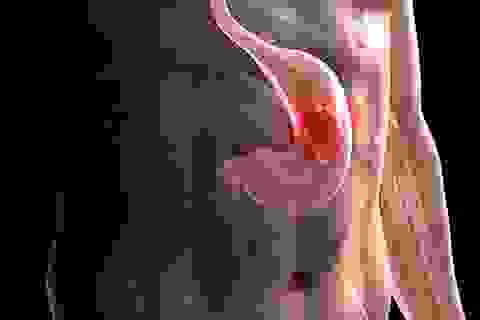 5 đối tượng có nguy cơ cao mắc ung thư dạ dày