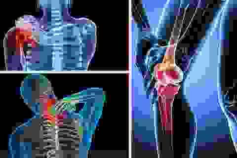 Linh Cốt Vương - Tin vui cho người mắc bệnh xương khớp