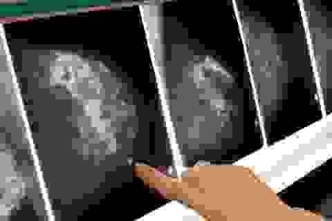 """Phát hiện """"thời điểm vàng"""" ngăn chặn ung thư di căn"""