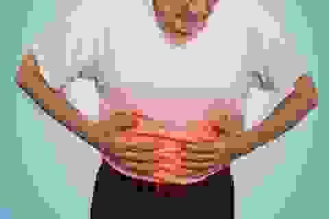 Học theo phương pháp ứng phó với viêm đại tràng của bác sĩ Đại học Y